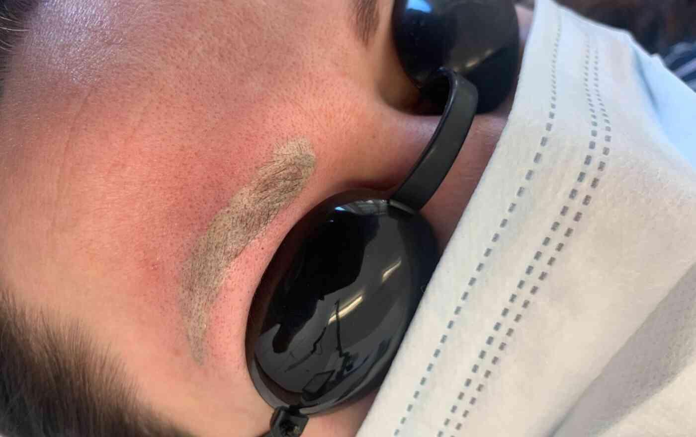 Risiken und Nebenwirkungen der Lasertherapie bei Permament-Make-up-Entfernung