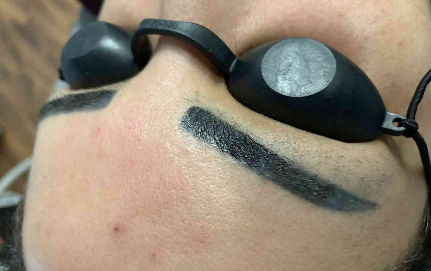 Wie funktioniert die Entfernung von Permanent Make-up