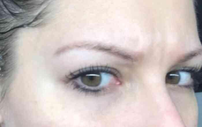 Augenbrauen Permanent Make-up nach der Entfernung