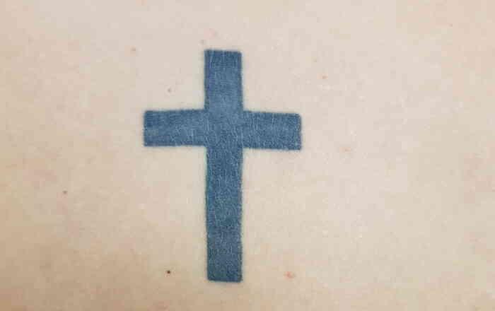 Tattoo_enternen_mit_Laser_vorher