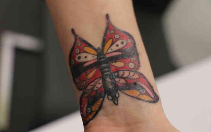 Tattoo_mehrfarbig_Entfernung_vorher