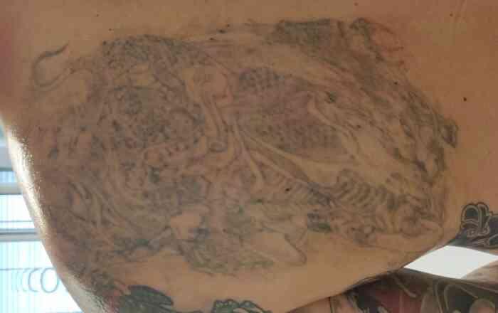 Tattooaufhellung_Laser_Cover_up_Vorbereitung_nachherfoto