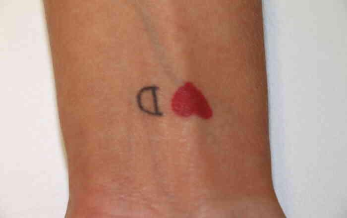 Tattooentfernung_Handgelenk_rot_schwarz_picosure_vorher