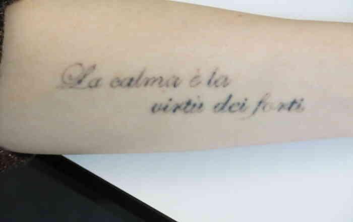 Tattooentfernung_Laser_Picosure_Zwischenergebnis