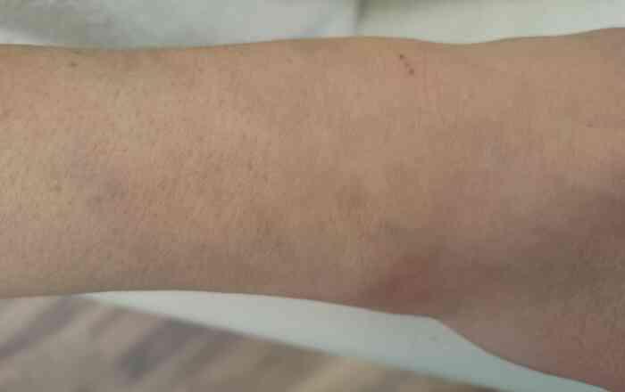 tattoo_entfernen_laser_pico_nachher